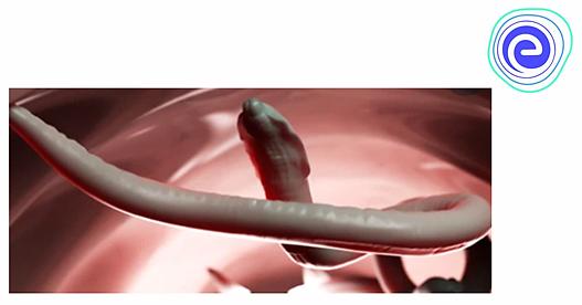 szuper phylum aschelminthes aki férgekkel foglalkozik