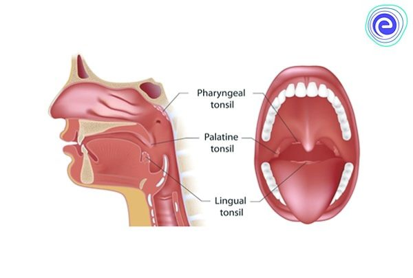 Types of Tonsils